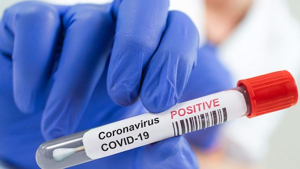 BREAKING: 126 new cases of COVID-19 take Nigeria's total to 59,127; death toll now 1,112
